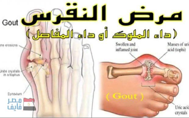 بالصور علاج النقرس , ماهو العلاج الامثل لنقرس 5587