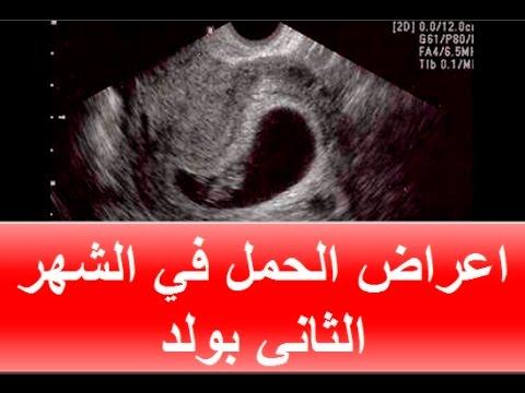 صور علامات الحمل بولد في الشهر الثاني , ماهى علامات الحمل بولد فى الشهر التانى