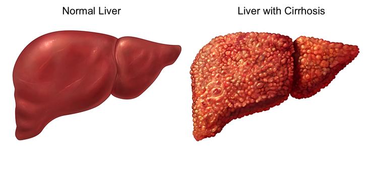بالصور علاج تليف الكبد ماهو علاج تليف الكبد 5638 1