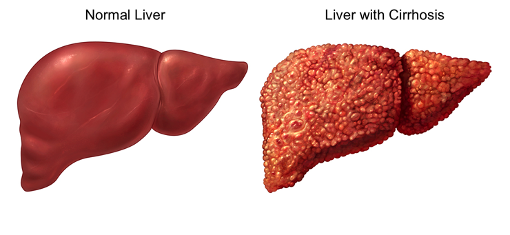 صور علاج تليف الكبد ماهو علاج تليف الكبد