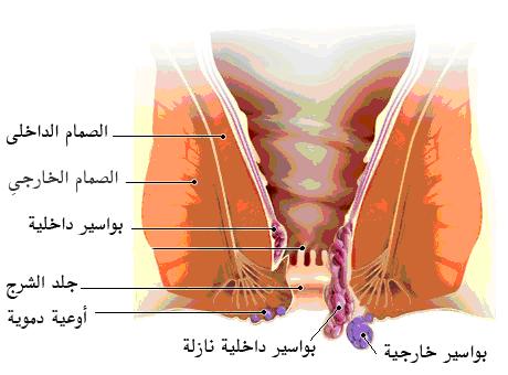 صور مرض البواسير , اسباب مرضى البواسير