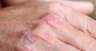 علاج الصدفية بالاعشاب , الاعشاب الافضل لعلاج الصدفيه