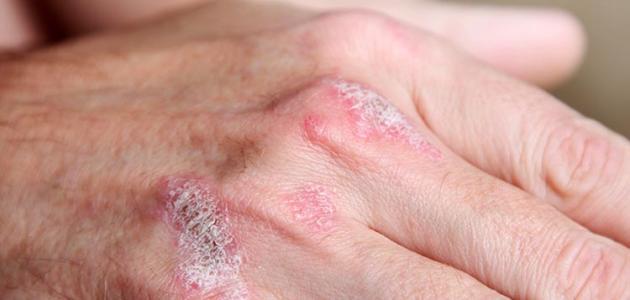 صور علاج الصدفية بالاعشاب , الاعشاب الافضل لعلاج الصدفيه