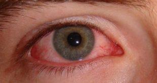 صور العين الحمراء , كيف تعالج احمرار العين