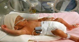 اسباب الولادة المبكرة , الاسباب التي تؤدي للولادة المبكرة