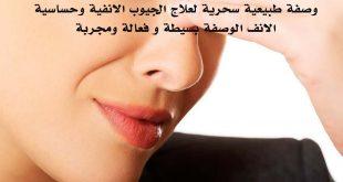 بالصور علاج حساسية الانف , تخلصى من حساسية الانف 5134 3 310x165