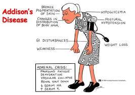 صور مرض اديسون , اسباب اديسون وعلاجه