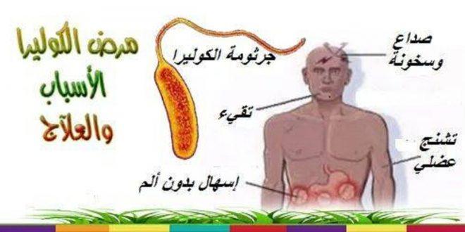 صور مرض الكوليرا , ماهى اعراض مرض الكوليرا