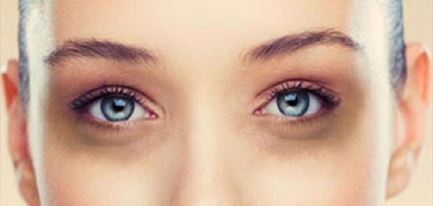 بالصور الهالات السوداء تحت العين , اسباب الهالات السوداء تحت العين 5412 1