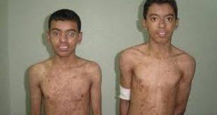 صورة مرض العضال , ماهو مرض العضال 5419 2 310x165