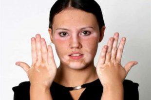 صور مرض البهاق , ماهو اعراض مرض البهاق
