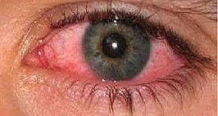 صورة علاج حساسية العين , كيفية التخلص من حساسية العين