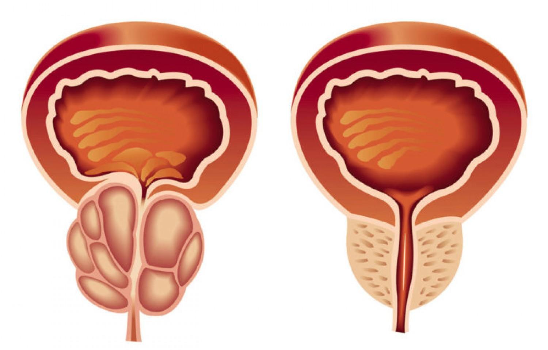 صور علاج تضخم البروستاتا , كيفيه علاج البروستاتا