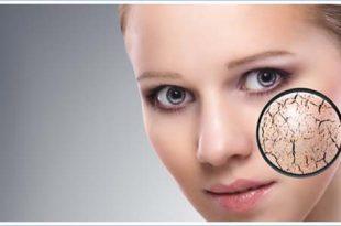 صور علاج البشرة الجافة , حل مشكلة البشرة الجافة