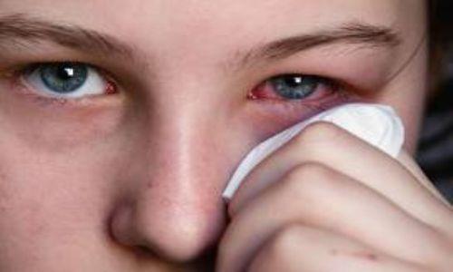 صور علاج حساسية العين , كيفية التخلص من حساسية العين
