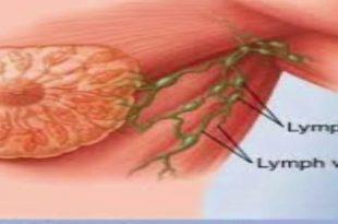 صور مرض سرطان الثدي , تعرف علي كيفية اكتشاف مرض سرطان الثدي