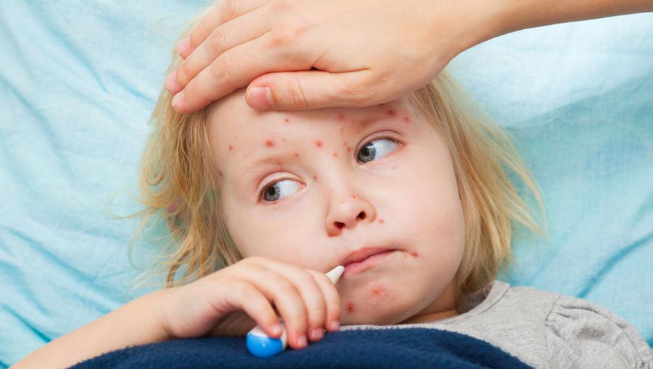 صور مرض الحصبة , تعرف على اسباب فيروس الحصبة و كيفية العلاج منها