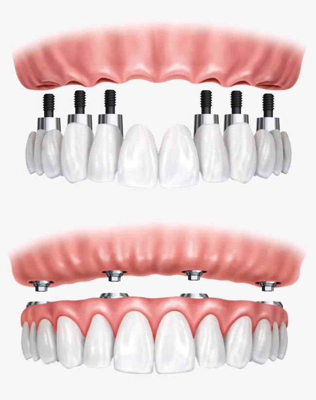 بالصور طقم اسنان , زراعه الاسنان بالتكنولوجيا الحديثه 5957 2