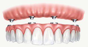 صور طقم اسنان , زراعه الاسنان بالتكنولوجيا الحديثه