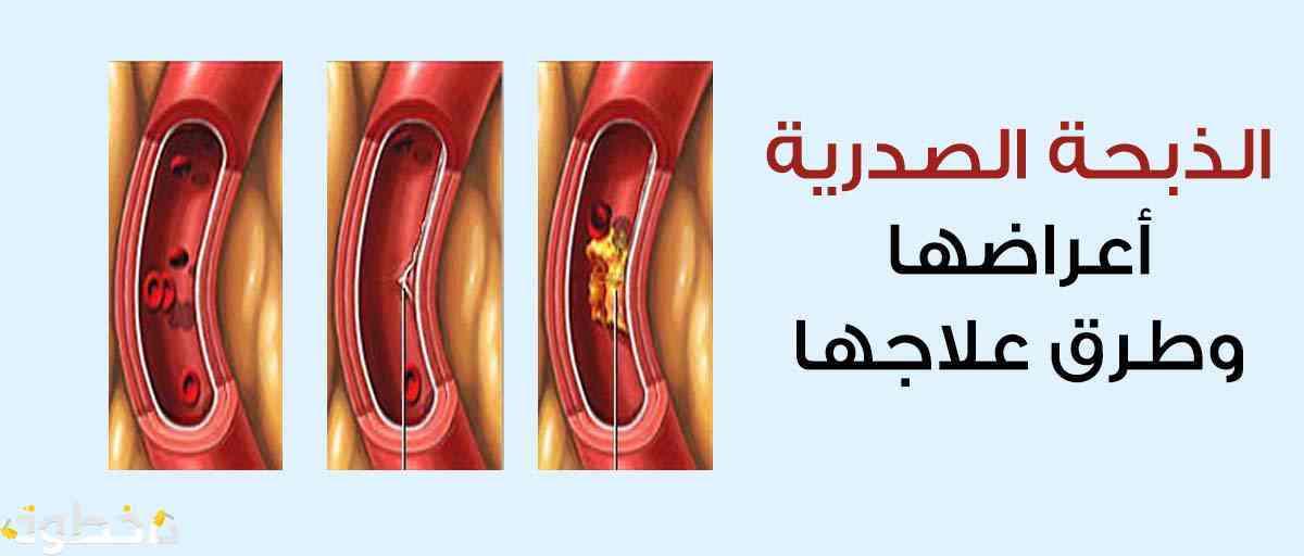 صور اعراض الذبحة الصدرية , الازمات الصدريه و الانقاذ منها