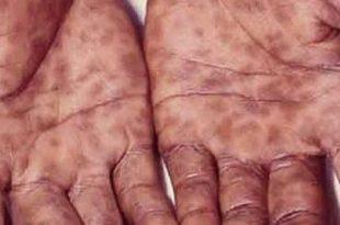 صورة مرض الزهري , تعلم عن مرض الزهري