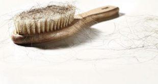 تساقط الشعر , علاج تساقط الشعر