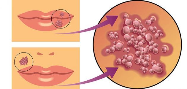 بالصور مرض الكزاز , تعرف على مرض الكزاز 3854 2