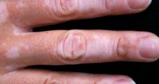 بالصور علاج البهاق , تعرف على علاج البهاق 3997 3 310x165