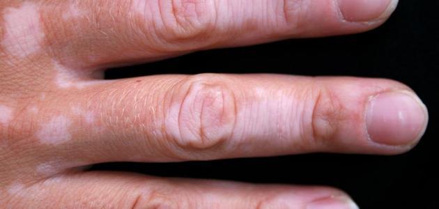 صورة علاج البهاق , تعرف على علاج البهاق