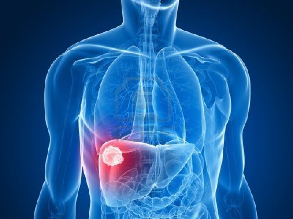 صورة اعراض مرض الكبد , ما هي اعراض مرض الكبد