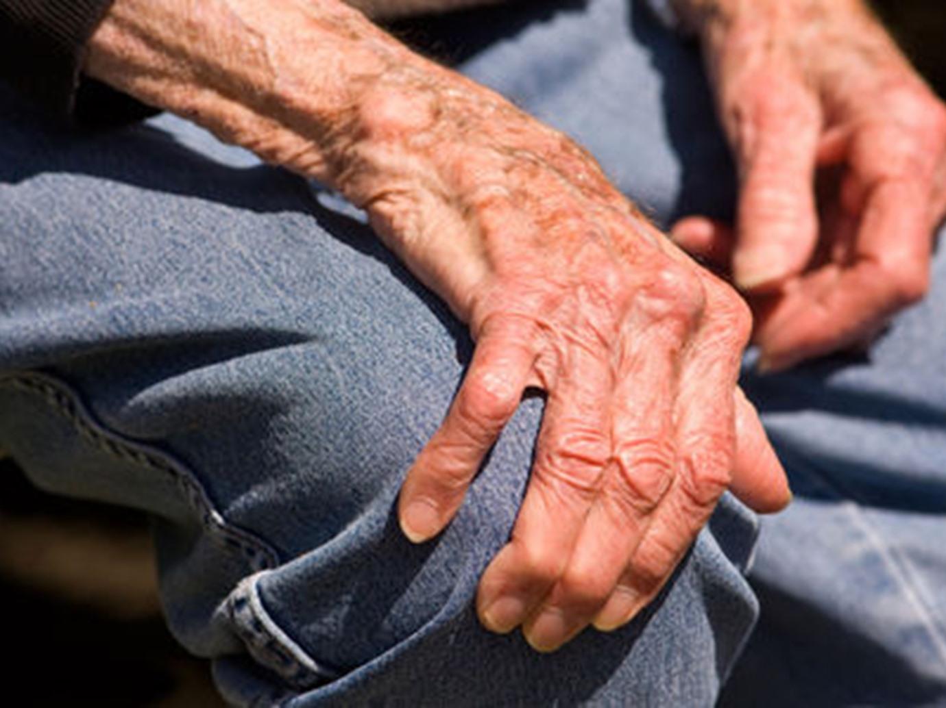 صورة مرض باركنسون , تعرف علي اسباب وطرق علاج مرض باركنسون