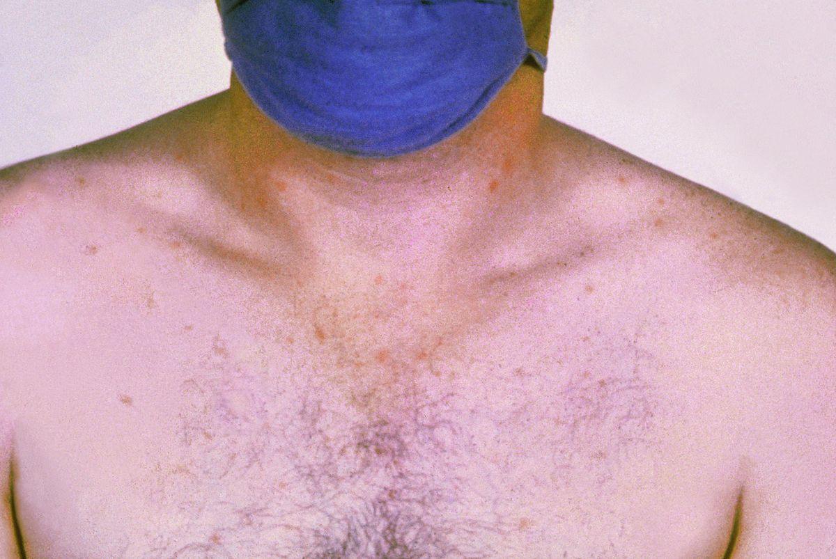 صور مرض التيفوئيد , اسباب وطرق علاج مرض التيفوئد