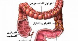صور مرض القولون , ماهي الاسباب لمرض القاولون