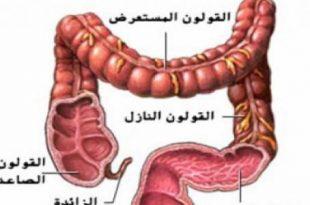 صورة مرض القولون , ماهي الاسباب لمرض القاولون
