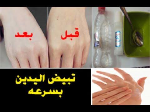 صورة طريقة تفتيح اليدين , وسيلة تبييض اليدين