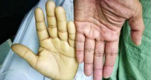 صور فقر الدم اعراضه , اسباب الانيميا ومضاعفاتها