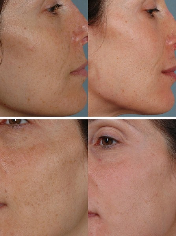 صور توحيد لون الجسم في اسبوع , طريقة جميلة لتبيض الجسم في مدة اسبوع