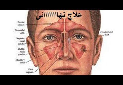 صورة علاج الجيوب الانفية بالاعشاب مجرب , وصفات مضمونة لعلاج الجيوب الانفية طبيعيا