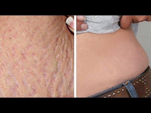 صورة علاج تشققات الجلد , افضل الطرق لعلاج تشققات الجلد نهائيا
