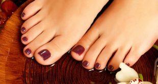 صور التخلص من سواد اصابع القدمين , طرق علاج سواد اصابع القدمين