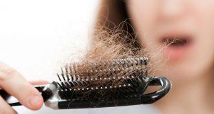 مشكلة تساقط الشعر , اسباب سقوط الشعر