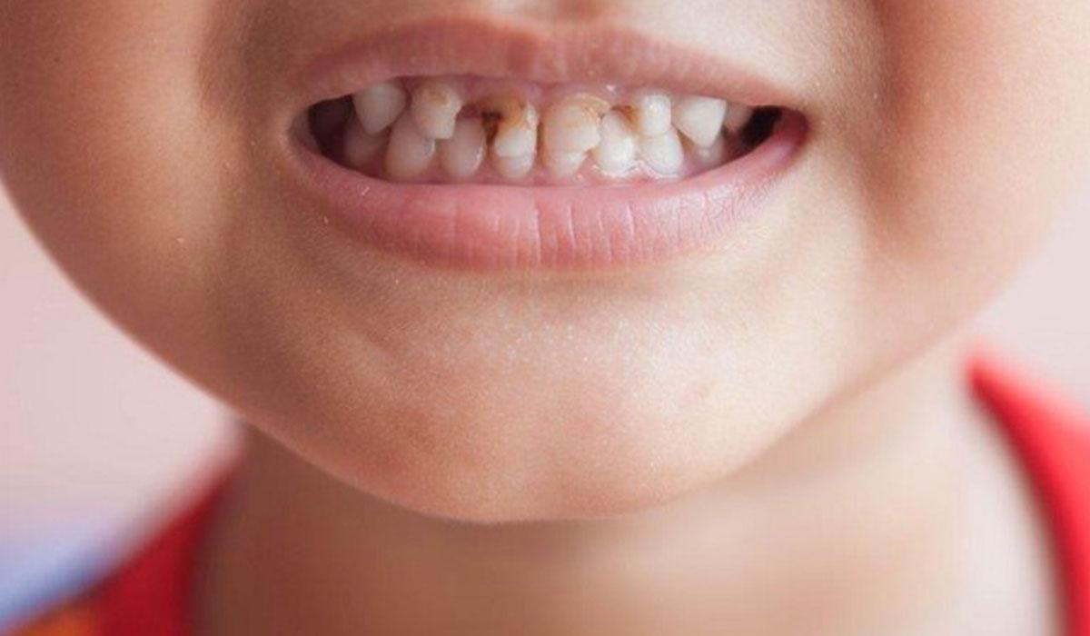 صورة علاج تسوس الاسنان عند الاطفال بالاعشاب , طرق طبيعيه لعلاج التسوس الاسنان عند الاطفال