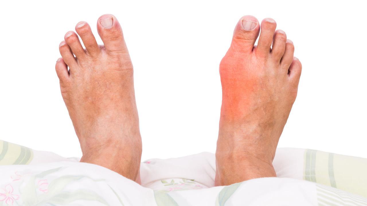 صورة مرض النقرس , ما هو هذا المرض