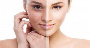 صور علاج الكلف , حل المشاكل الجلدية