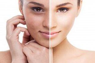 صورة علاج الكلف , حل المشاكل الجلدية