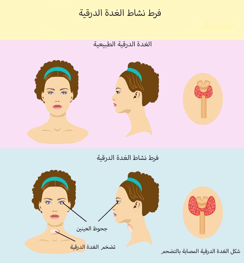 صورة اعراض الغدة الدرقية , اسباب تضخم الغدة الدرقية