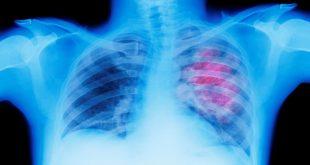 صورة تعرف علي علامات سرطان الرقة , اعراض سرطان الرئة
