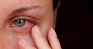 صورة ايه هي امراض العين وعلاجها , علاج العين