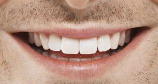 صورة خلي اسنانك تلمع , خلطات تبيض الاسنان
